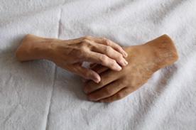procosil_prosthetic_hands